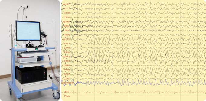 Video Electroencephalography